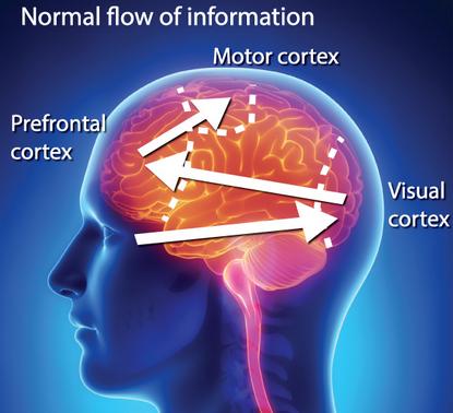 Neuroplasticità: nuove frontiere per la riabilitazione negli sportivi